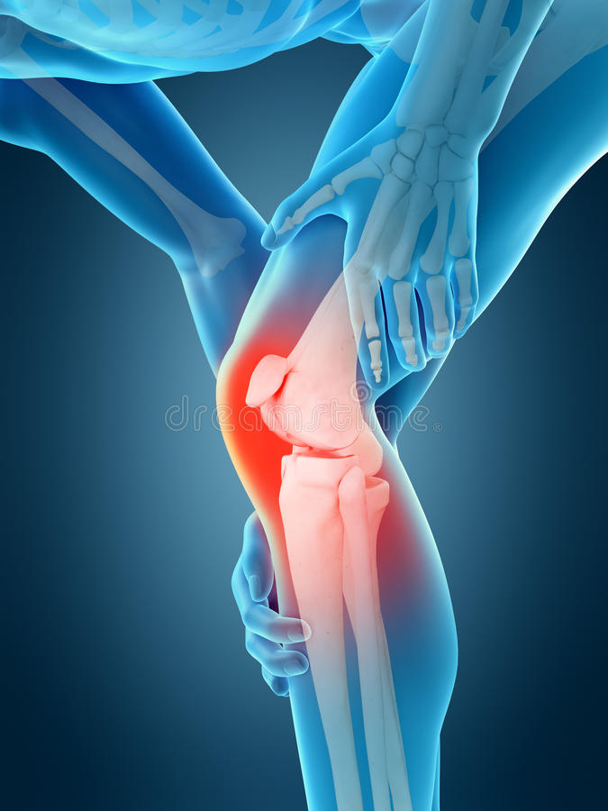 бегунка боли колена ушиба спорты мыжского идущие иллюстрация штока