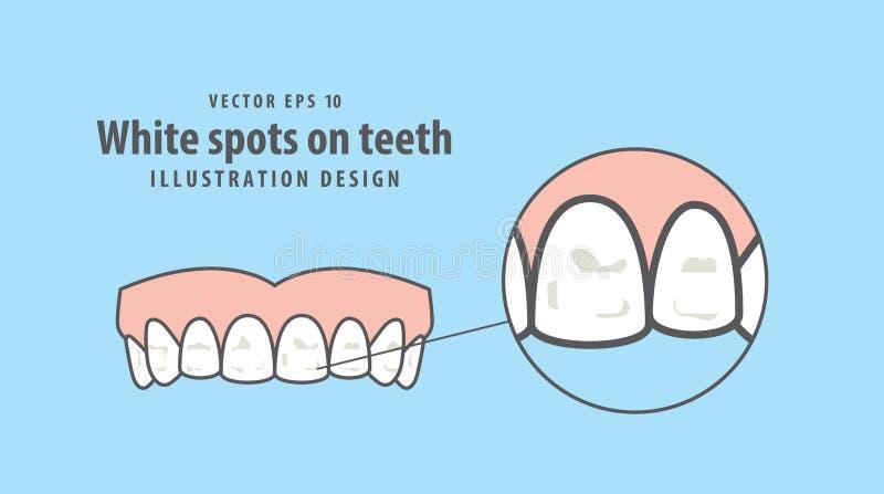 Белые пятна на векторе иллюстрации зубов на голубой предпосылке вертеп иллюстрация штока