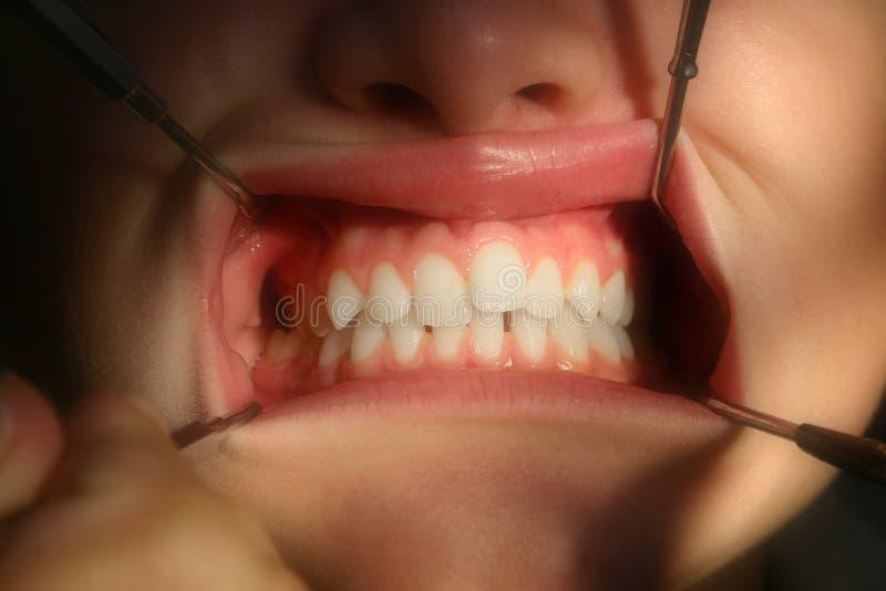 близкий осмотр дантиста вверх стоковые фото