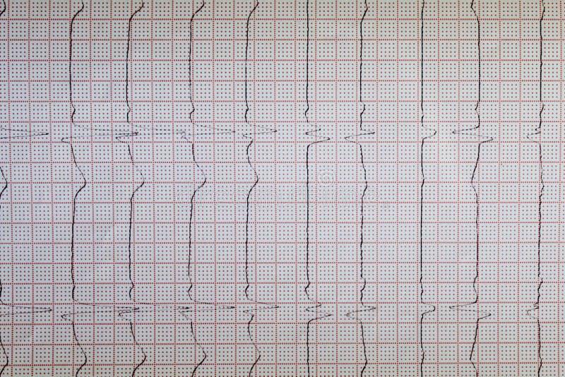 Близкий поднимающий вверх взгляд бумаги электрокардиограммы, график стоковое изображение