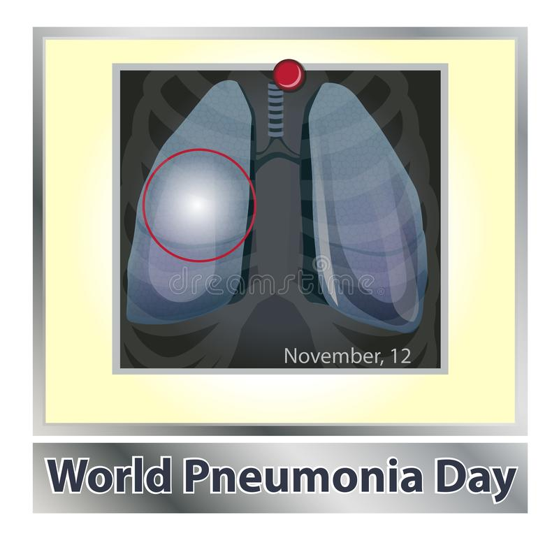 Болезнь легких символа дышая Дыхательная система Респираторное заболевание - астма рака, туберкулез, пневмония Мир бесплатная иллюстрация