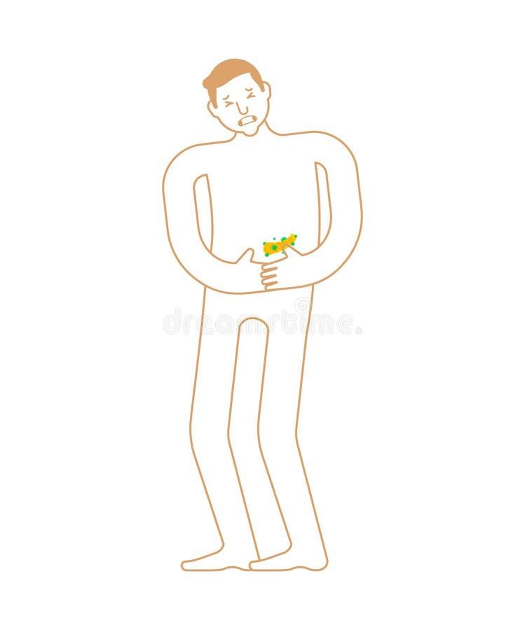 Больная анатомия панкреаса человеческого заболевания Больной внутренний орган иллюстрация вектора