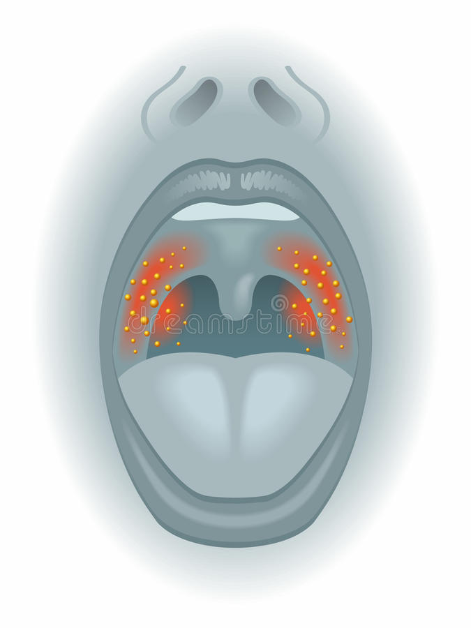 Боль в горле иллюстрация вектора