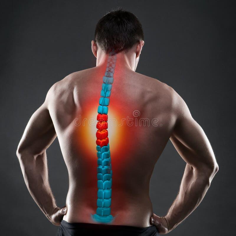 Боль в позвоночнике, человеке с backache, ушибом в человеческой задней части, концепцией обработок хиропрактики стоковое изображение