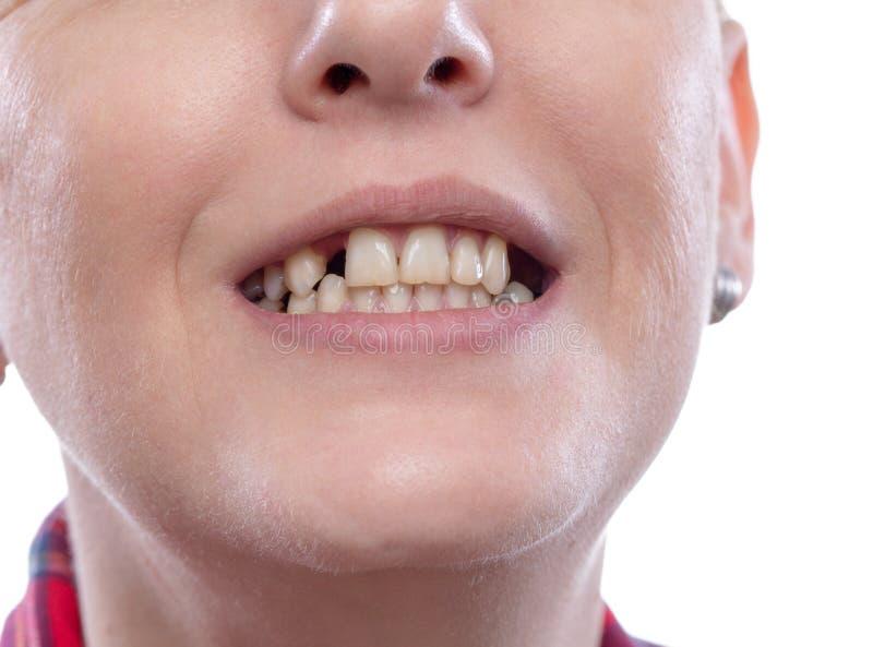 Боль зуба и зубоврачевание, сломленные зубы - зубы женщины сломленные повредили треснутый дантиста потребности переднего зуба для стоковое изображение rf