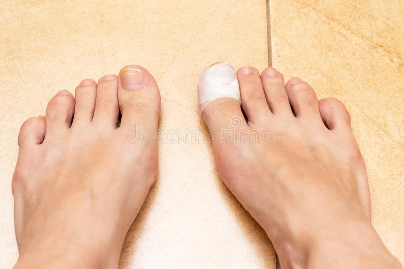 Босые ноги женщины с повязкой на пальце ноги Раненая скорая помощь пальца ноги стоковая фотография