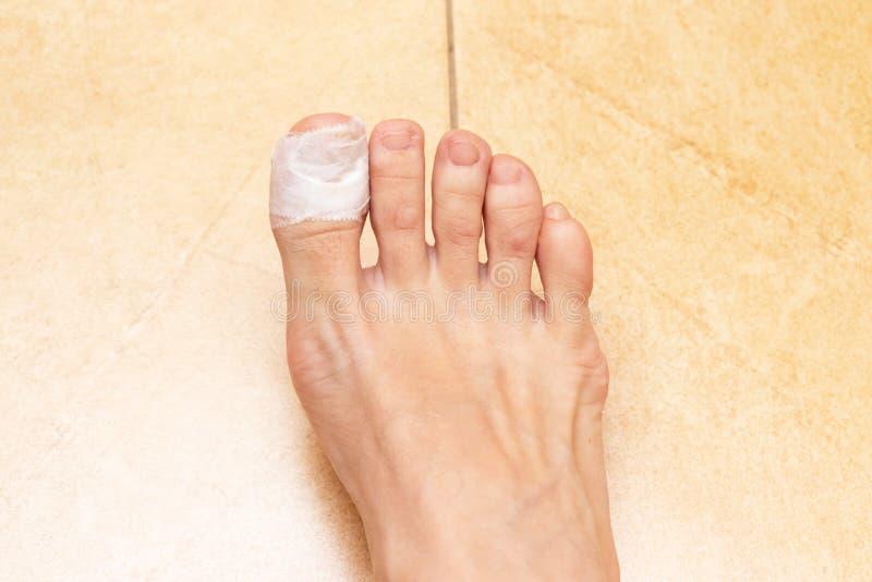 Босые ноги женщины с повязкой на пальце ноги Раненая скорая помощь пальца ноги стоковые фото