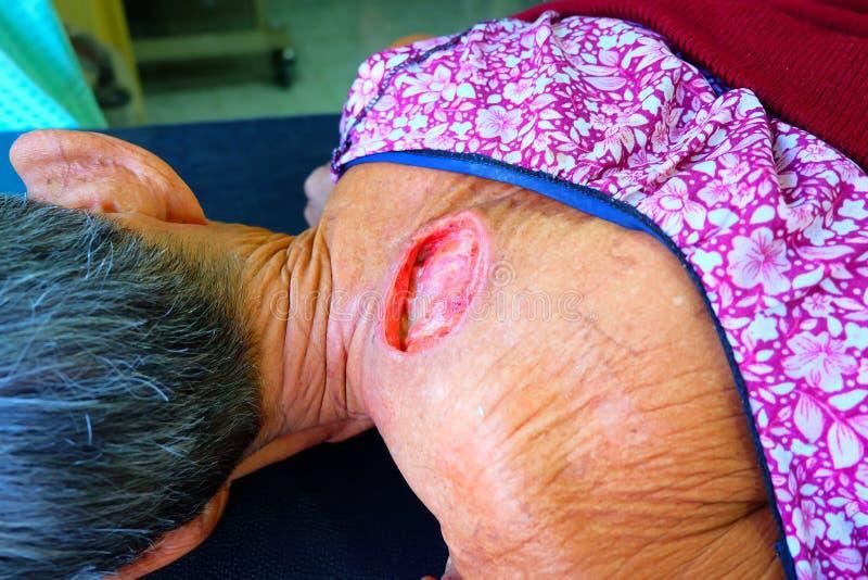 Большая рана на теле стоковые изображения