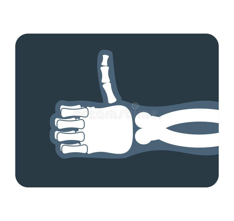 Большие пальцы руки поднимают рентгеновский снимок Косточки руки показывают совсем хорошее иллюстрация штока