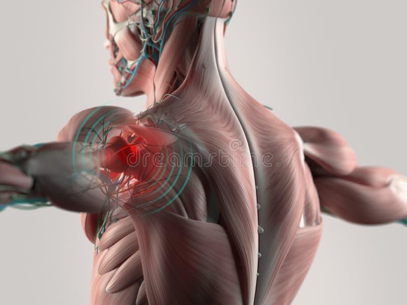 Боль плеча совместная стоковое изображение rf