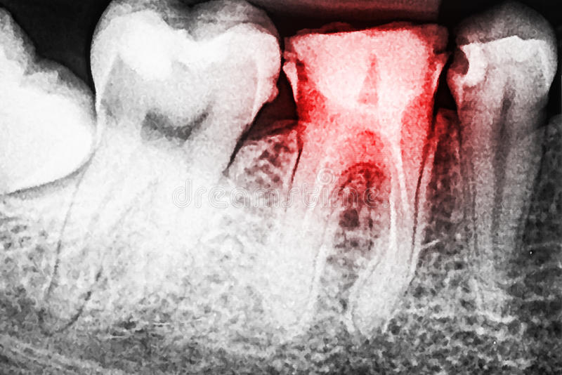 Боль спада зуба на рентгеновском снимке стоковые изображения