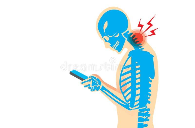 Боль шеи от Smartphone иллюстрация вектора