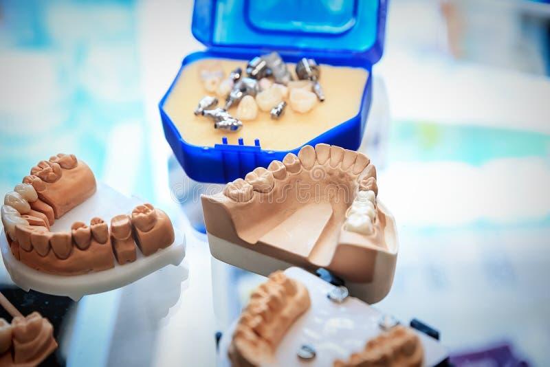Бросания dentures стоковые фотографии rf