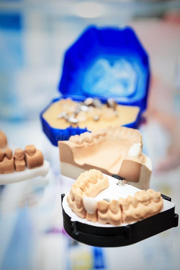 Бросания dentures стоковые фото