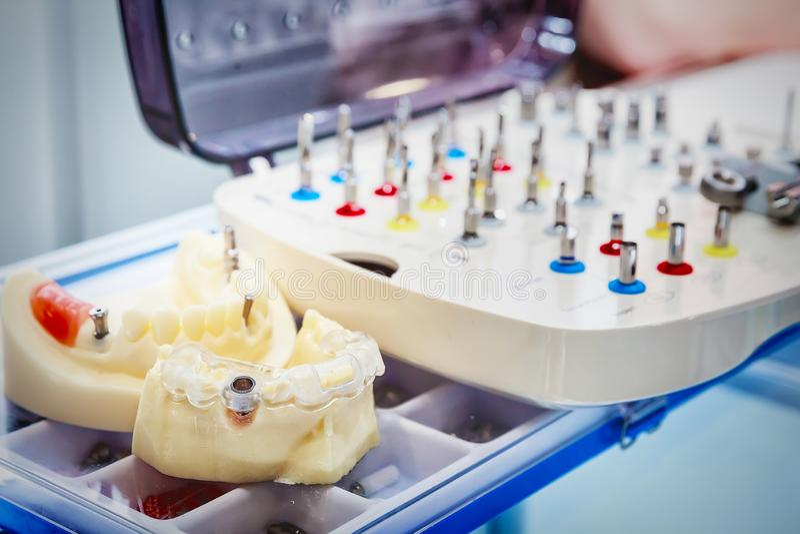 Бросания dentures стоковые изображения rf