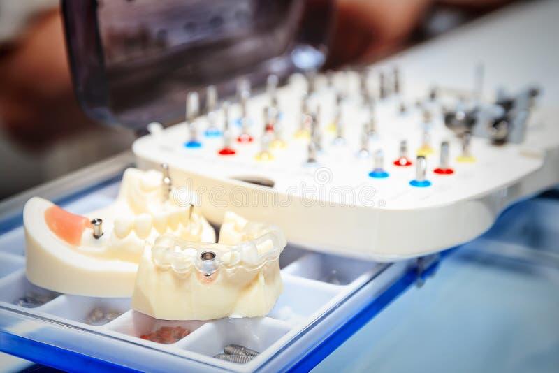 Бросания dentures стоковые изображения