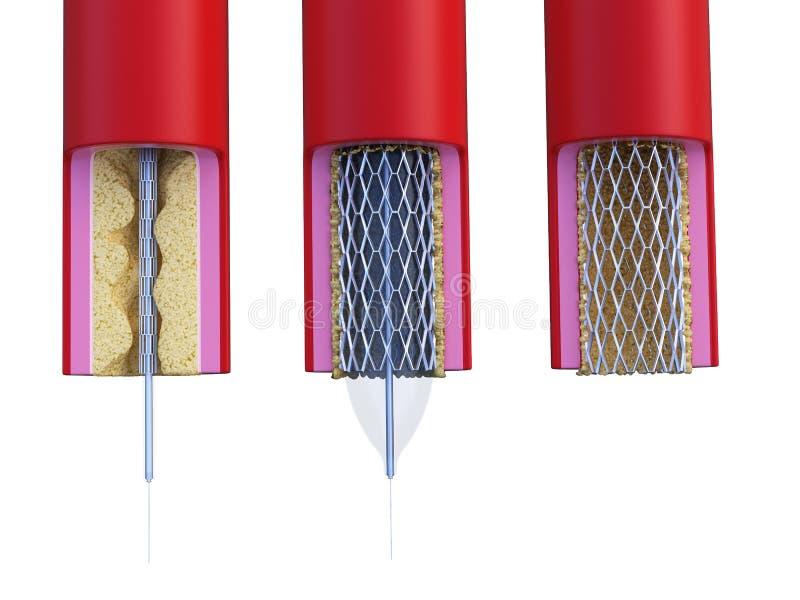 Будучи помещанным stent иллюстрация штока