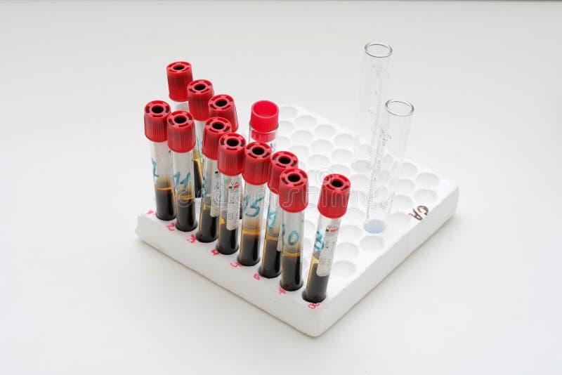 вакуум пробирок контейнеров крови стоковые изображения rf