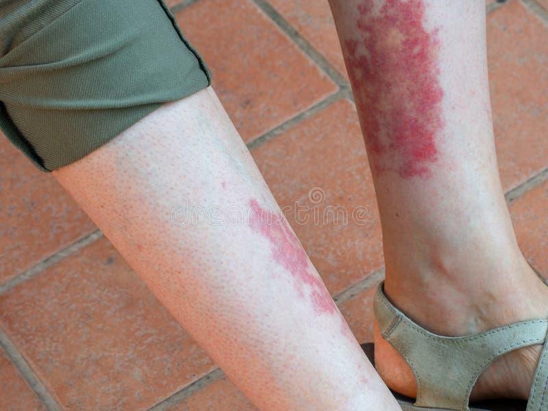 Васкулит Leukocytoclastic, воспалительная реакция в кровеносных сосудах Aka ` s игрока в гольф, ` s hiker или вызванное тренировк стоковые изображения rf