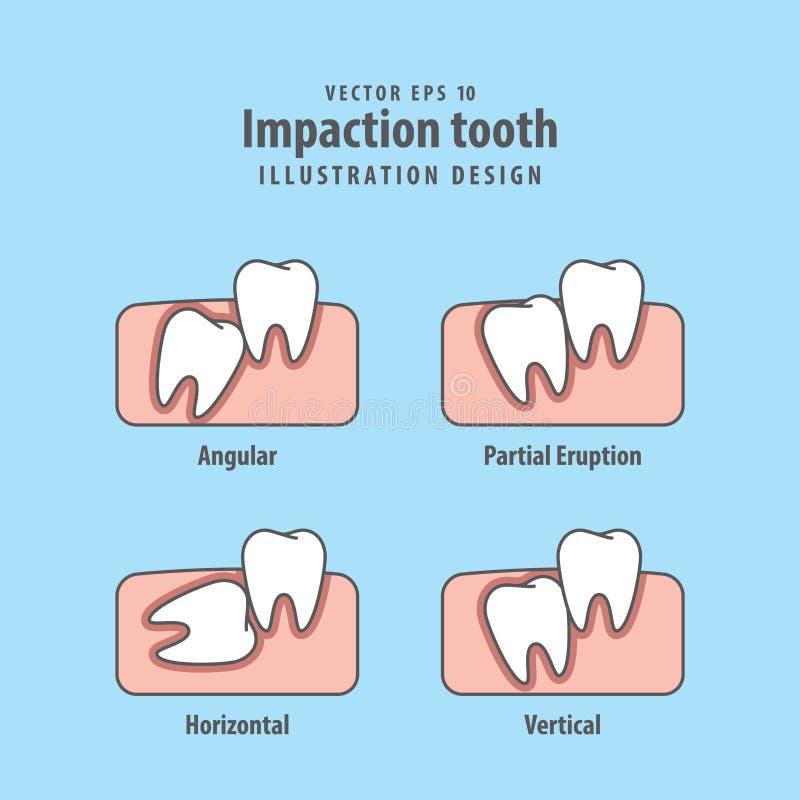Вектор иллюстрации зуба Impaction на голубой предпосылке зубоврачебно бесплатная иллюстрация