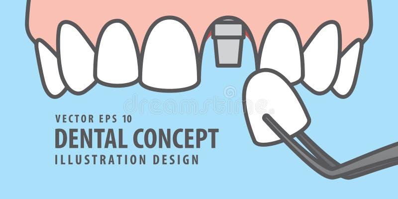 Вектор иллюстрации зуба implant верхнего знамени одиночный на голубом ба иллюстрация штока