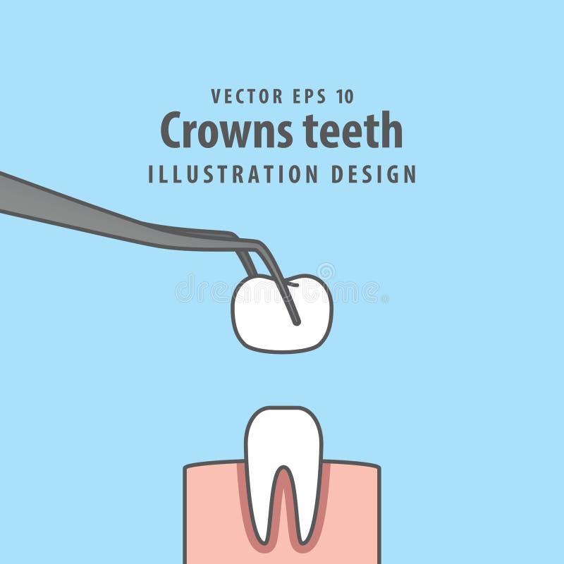 Вектор иллюстрации зубов кроны на голубой предпосылке зубоврачебно иллюстрация вектора