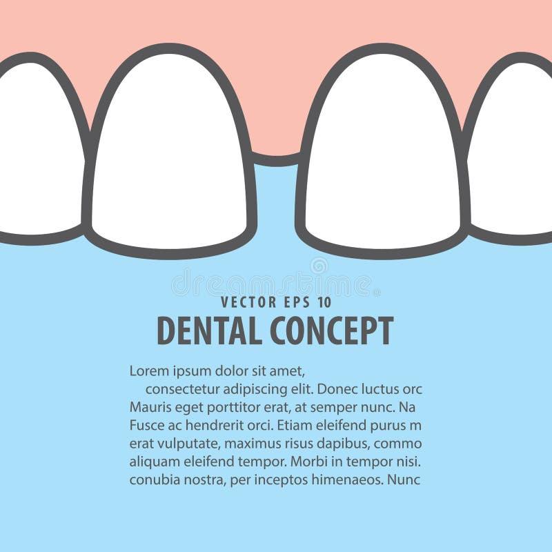 Вектор иллюстрации зубов diastema крупного плана плана верхний на сини иллюстрация вектора