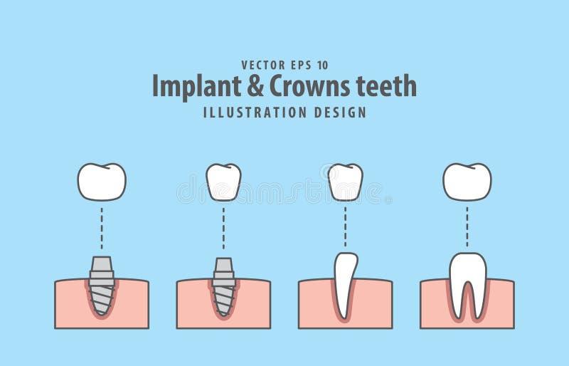 Вектор иллюстрации зубов Implant & крон на голубой предпосылке иллюстрация вектора