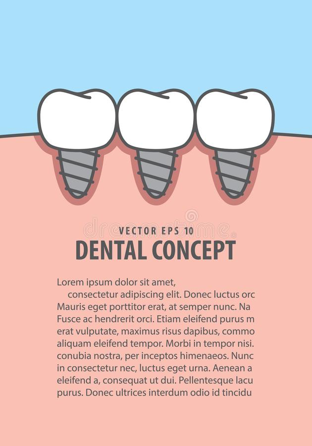 Вектор иллюстрации зубов Implant плана на голубой предпосылке вертеп иллюстрация штока