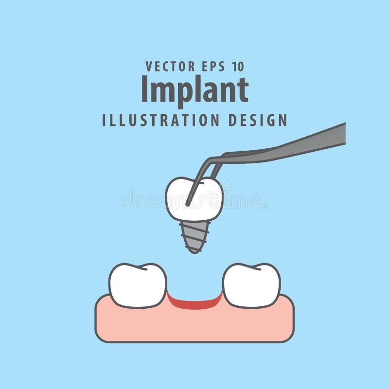 Вектор иллюстрации Implant на голубой предпосылке чистя щеткой вектор зубов малыша принципиальной схемы зубоврачебный иллюстрация штока