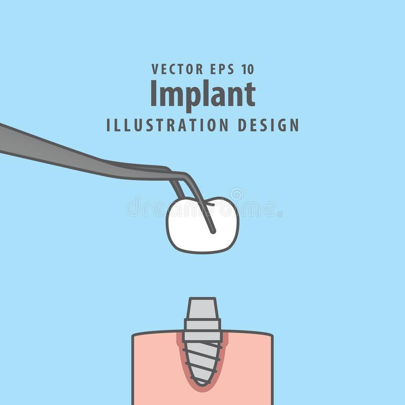 Вектор иллюстрации Implant на голубой предпосылке чистя щеткой вектор зубов малыша принципиальной схемы зубоврачебный иллюстрация вектора