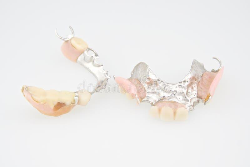 Верхняя часть и дно Denture сделанные от пластмассы и металла стоковая фотография
