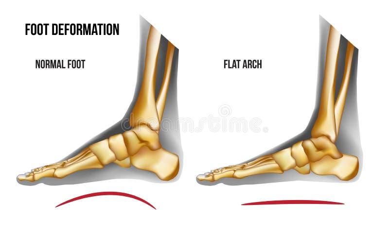 Взгляд свода ноги анатомии плоский медиальный бесплатная иллюстрация