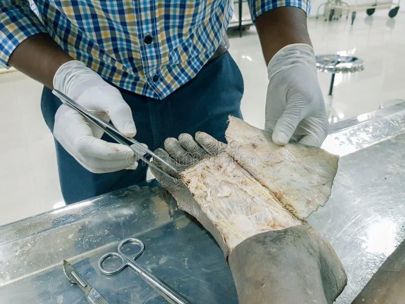 Взрезывание анатомии кадавра показывая dorsum ноги используя щиток кожи вырезывания ножниц и пинцета скальпеля показывая важный s стоковые изображения rf
