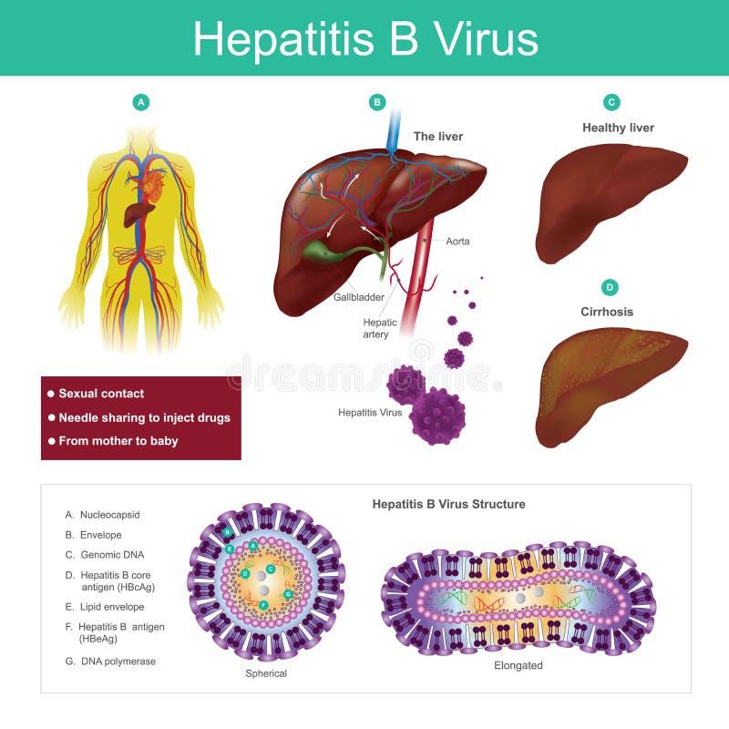 Вирус Гепатита B Передают вирус главным образом сексуальным жуликом бесплатная иллюстрация