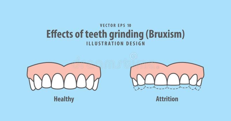 Влияния вектора иллюстрации молоть зубов Bruxism на сини бесплатная иллюстрация
