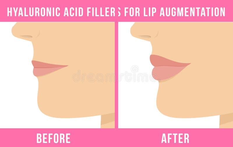 Влияния увеличения губы бесплатная иллюстрация