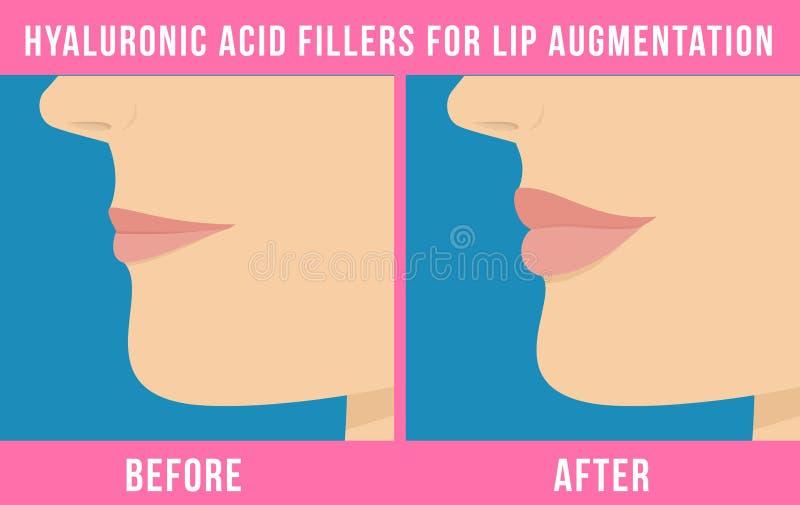 Влияния увеличения губы иллюстрация штока