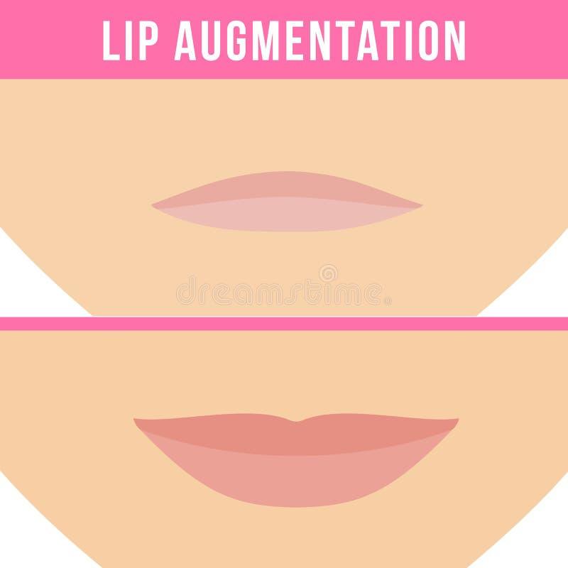 Влияния увеличения губы иллюстрация вектора