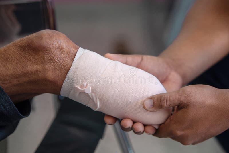 Внизу пациент ампутации колена с эластичный перевязывать стоковое изображение rf