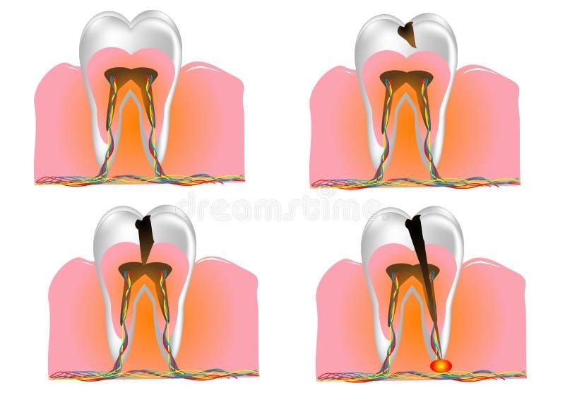 Структура зуба иллюстрация вектора