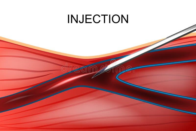 Внутривенная впрыска лекарств иллюстрация вектора