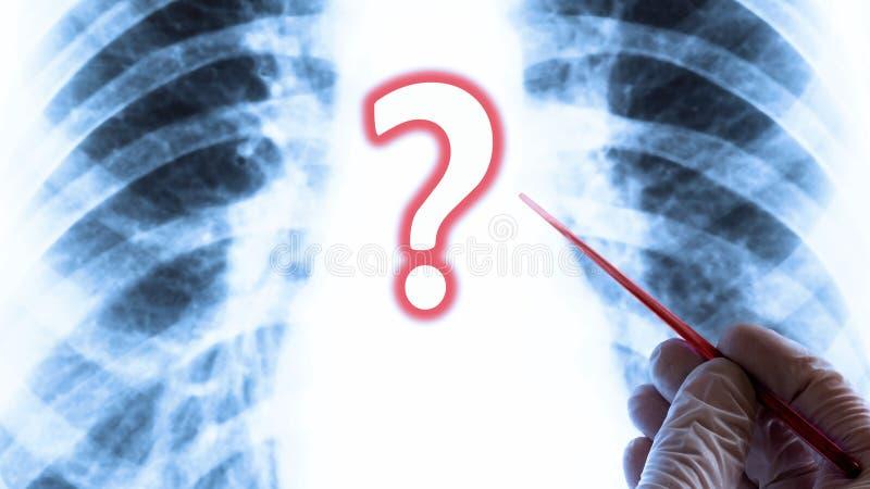 Вопрос здоровья или болезни легких МЕДИЦИНСКАЯ принципиальная схема Рука в перчатке с красным указателем на предпосылке рентгена  стоковые изображения