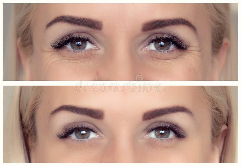 Впрыски botox Before and after стоковая фотография