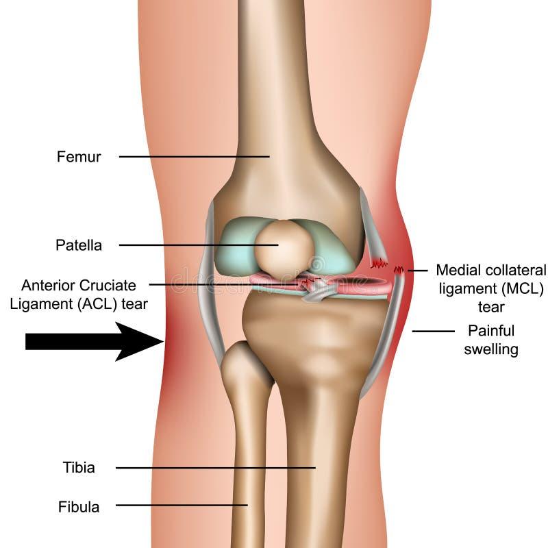 Вывихнутое колено, иллюстрация вектора медиального коллатерального разрыва лигамента медицинская изолированная на белой предпосыл бесплатная иллюстрация
