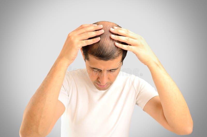 Выпадение волос стоковое изображение