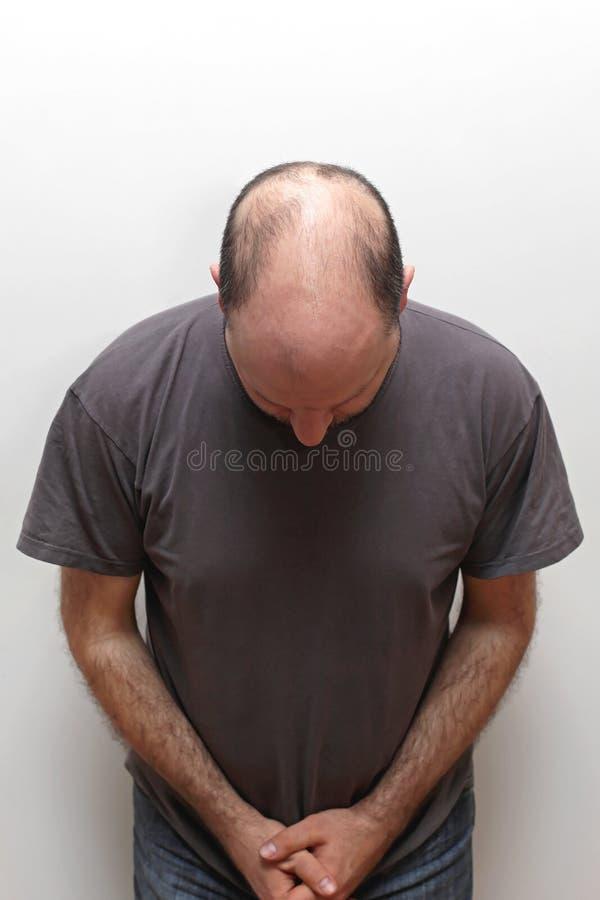 Выпадение волос стоковое изображение rf