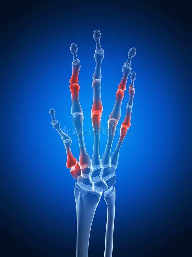 Выделенная рука arthritic иллюстрация вектора