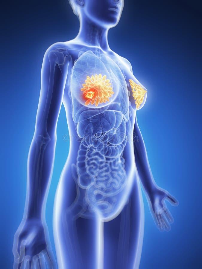 Выделенный рак молочной железы иллюстрация вектора