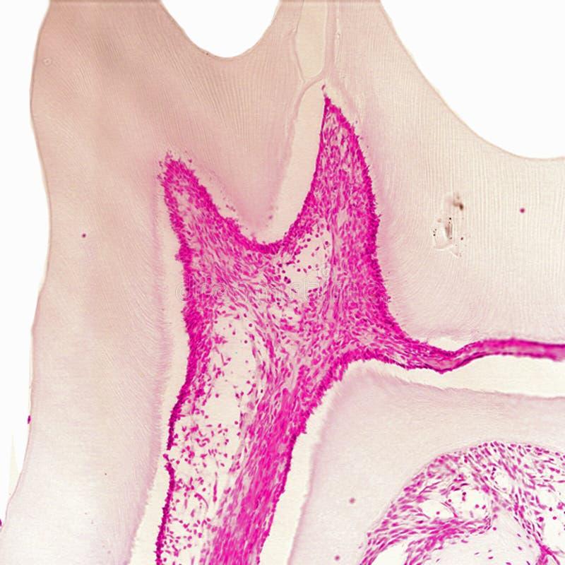 Гистологический раздел молярного зуба стоковое изображение